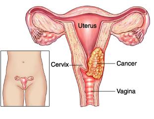 cancer-cervical
