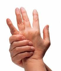 artritis-causas