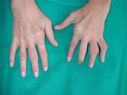 artritis-reumatoidea-sintomas